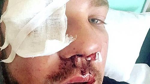ForPost - Бастрыкин наградил парня, которого жестоко избили в метро