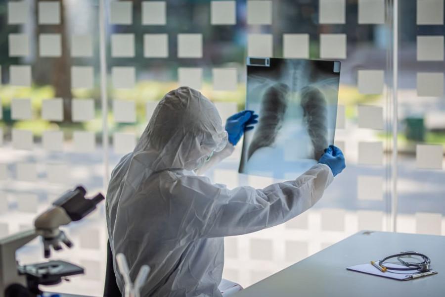 ForPost - Новости : Врач перечислил первые симптомы тяжелой формы коронавируса