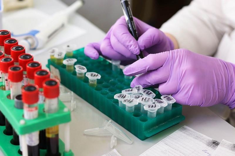 ForPost - Новости : Вирусолог назвал способы победить коронавирус