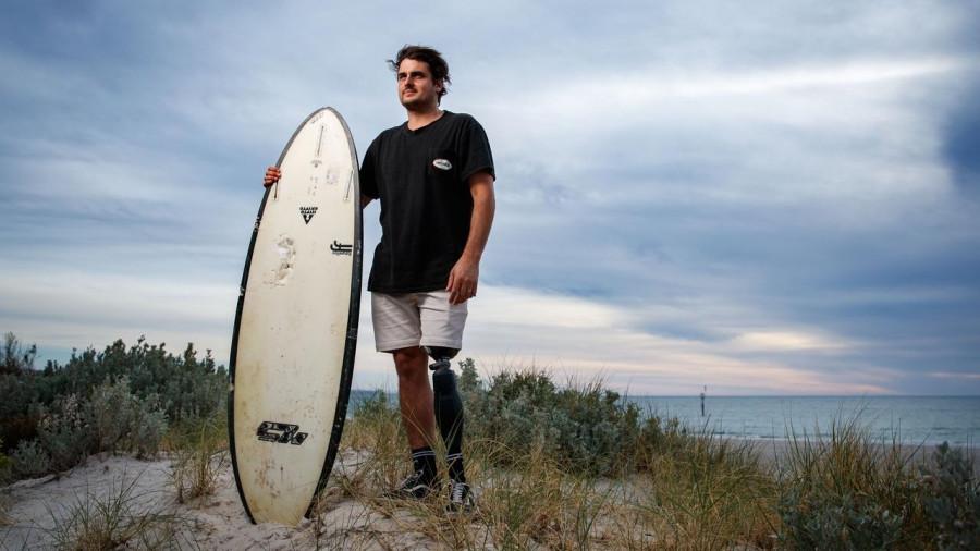 ForPost - Новости : Жителю Австралии после судьбоносной встречи с акулой разрешили взять домой акулий зуб