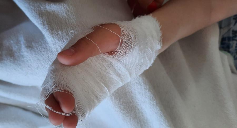 ForPost - Новости : Севастопольский малыш получил рваную рану на детской горке
