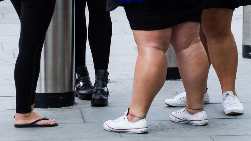 ForPost - Новости : Война жирным: россияне хотят избавить общество от тучных людей