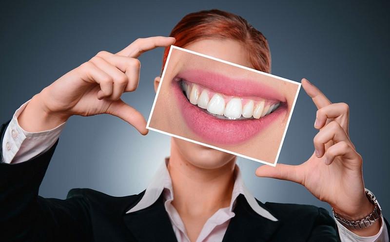 ForPost - Новости : «Я мутант»: у женщины в носу выросли зубы