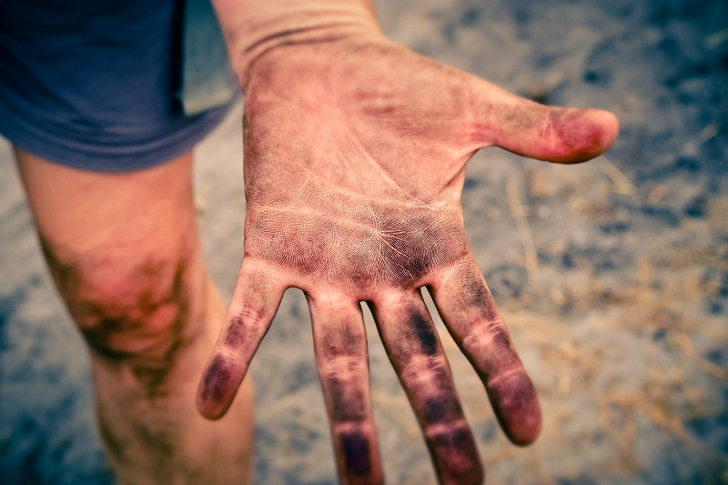ForPost - Новости : За фалангу пальца крымчанин отсудил полмиллиона у работодателя
