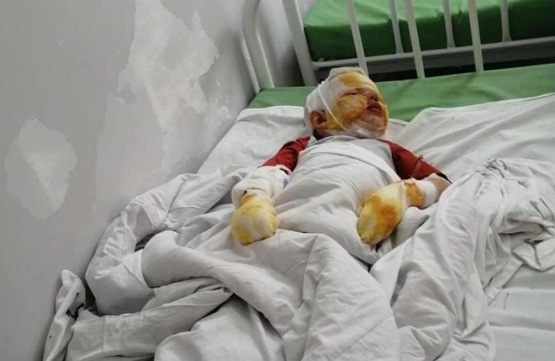 ForPost - Новости : «Он сделал все, как и говорил»: в Крыму отец с ребенком подорвались на газовом баллоне
