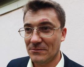 ForPost - Новости : Защита коммунальной собственности закончилась для Ивана Комелова и его жены нанесением телесных повреждений и ограблением. За прошедшие сутки милиция ничего не предприняла...
